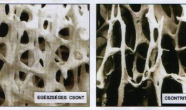 csontritkulas