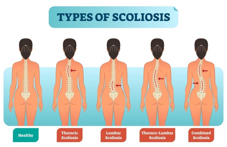 scoliosis_types